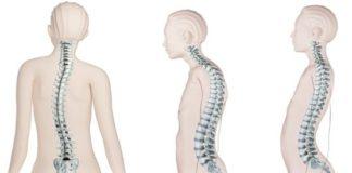 kelainan pada tulang belakang