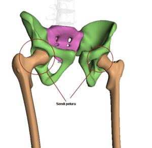 Sendi peluru pada tulang paha